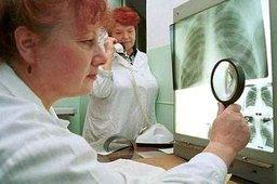 Больных туберкулезом заставят лечиться